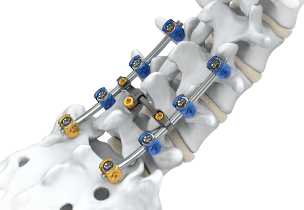 Profitable Insights Of Global Mis Sacroiliac Joint Fusion Market Outlook: Ken Research