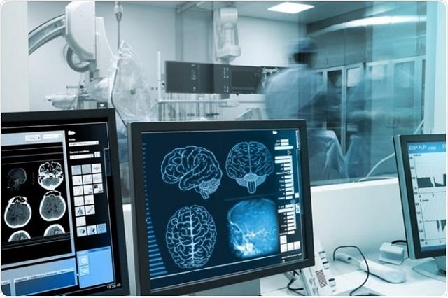 Intensifying Scenario of Global Diagnostic Imaging Market Outlook: Ken Research